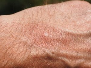 Mosquito Pest Control - Croach - Mosquito bit welt on man's hand